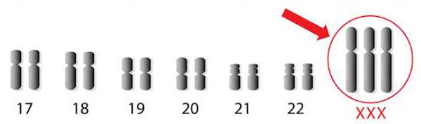 xxx chromosomes
