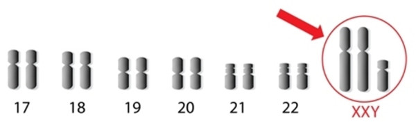 xxy chromosomes