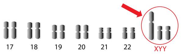 xyy chromosomes