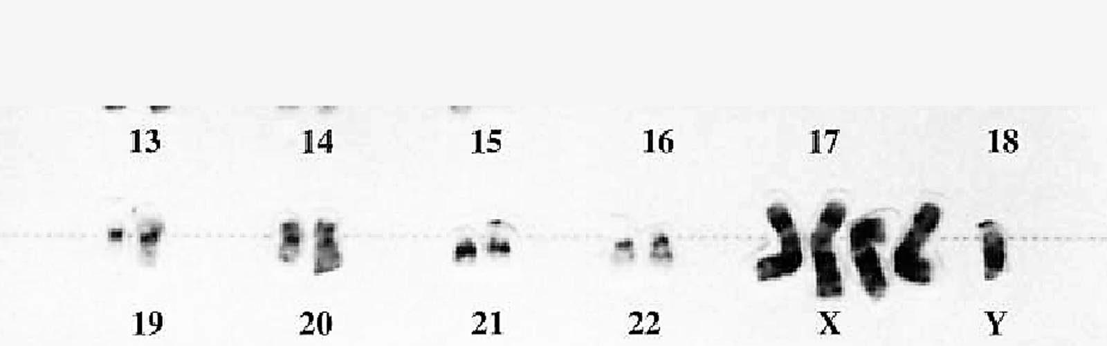 xxxxy chromosomes